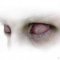 слепые красные глаза